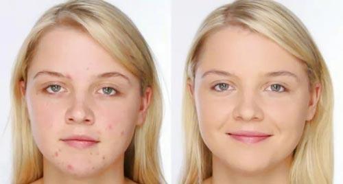 chica con cicatrices antes y despues