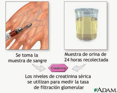 cebolla con limon para el acido urico acido urico na urina sintomas acido urico alto pies hinchados