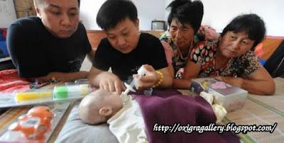 Bayi 3 Bulan Kurus Kering, Karena Tak Memiliki Lubang Anus