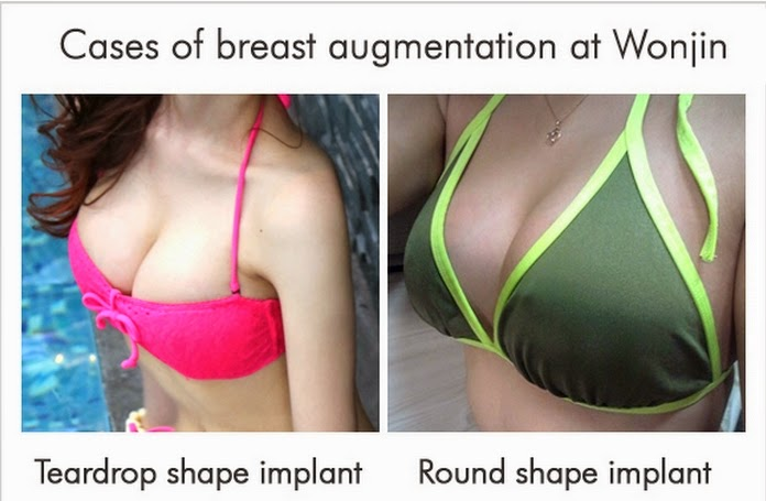 Cases of breast augmentation at Wonjin