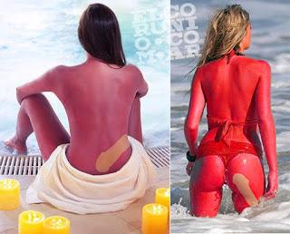 tatuaje solar,  peligros salud, penes, chotas
