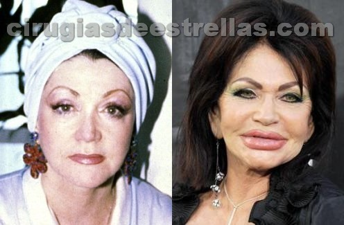 jackie stallone before after plastic surgery