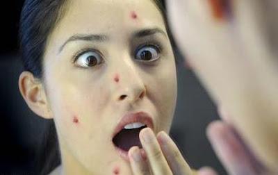Những bệnh vùng kín hiện hình lên mặt