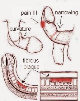 penile pain cause peyronie disease