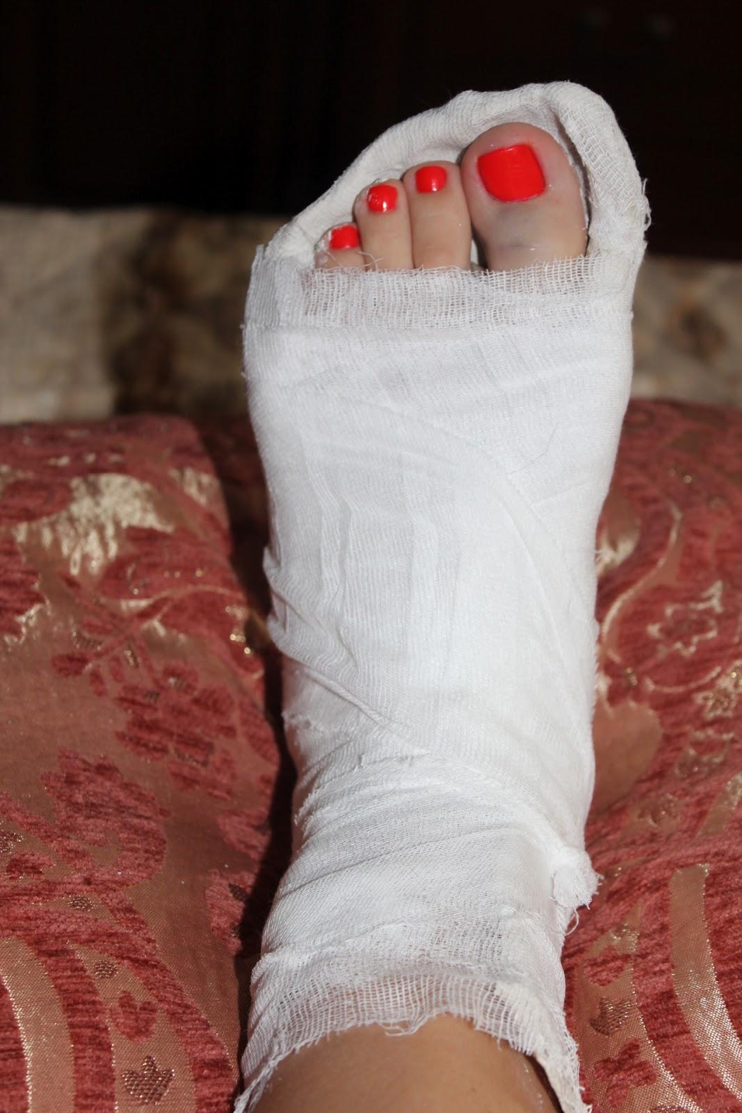 Фото пальцы на ножках 9 фотография