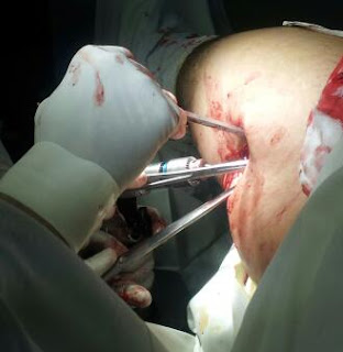 steroid injection knee procedure