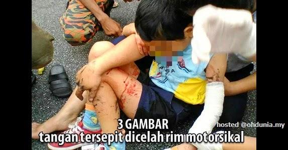 Cemas: Tangan budak tersepit di celah rim motosikal (3 Gambar)