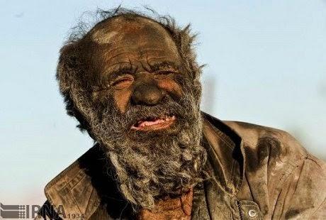 Inilah Manusia Terkotor di Dunia, Tak Pernah Mandi Selama 60 Tahun