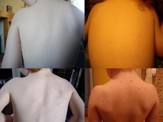 chicken pox on 3 year old boy