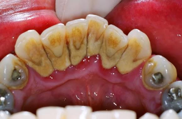 Tips Membersihkan Karang Gigi Dalam Mulut