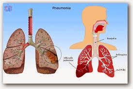 Obat Untuk Penyakit Pneumonia