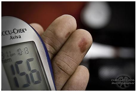 medicina natural contra acido urico alto acido urico valores de referencia en ninos diagnostico acido urico alto