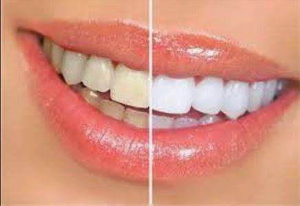 Tips membuat gigi lebih putih dengan cepat