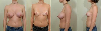 meme küçültme ameliyatı fiyatı, göğüs küçültme ameliyatı ücreti