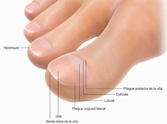 El hongo de las uñas de los pies de la complicación