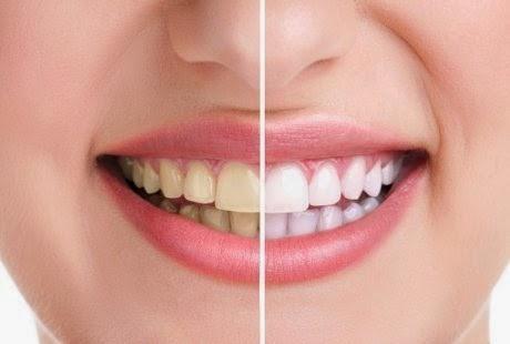 Cara Mudah Memutihkan Gigi Secara Cepat dan Alami