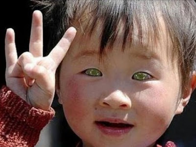 Blue Eyed Chinese Boy Who Can See in the Dark.