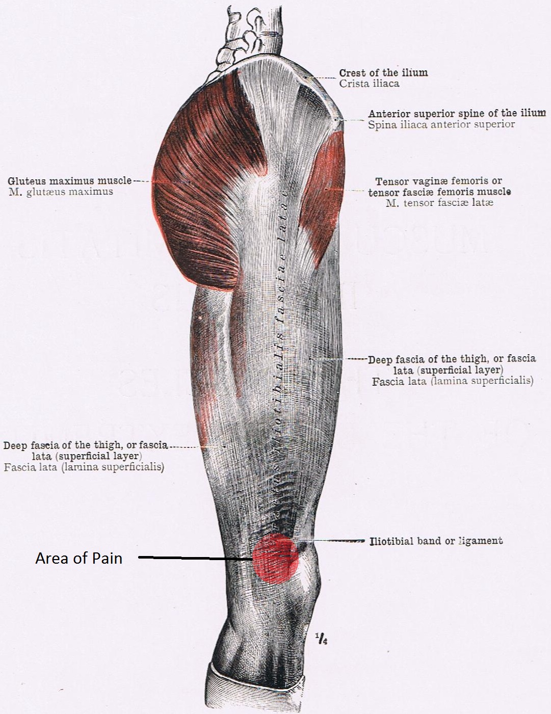Anatomy of the Sinew Channels: Iliotibial Band Friction Syndrome: A ...