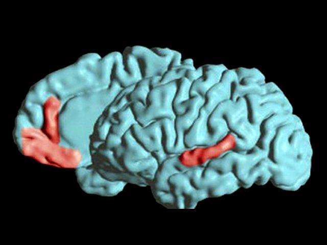 Cuándo Sospechar De La Aparición De Un Tumor Cerebral