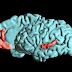 ¿ Cuándo Sospechar De La Aparición De Un Tumor Cerebral ?