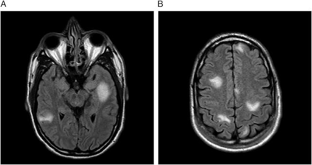 Focal Lesions - MRI