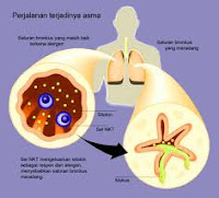 Alternatif Pengobatan Gangguan Sistem Pernafasan