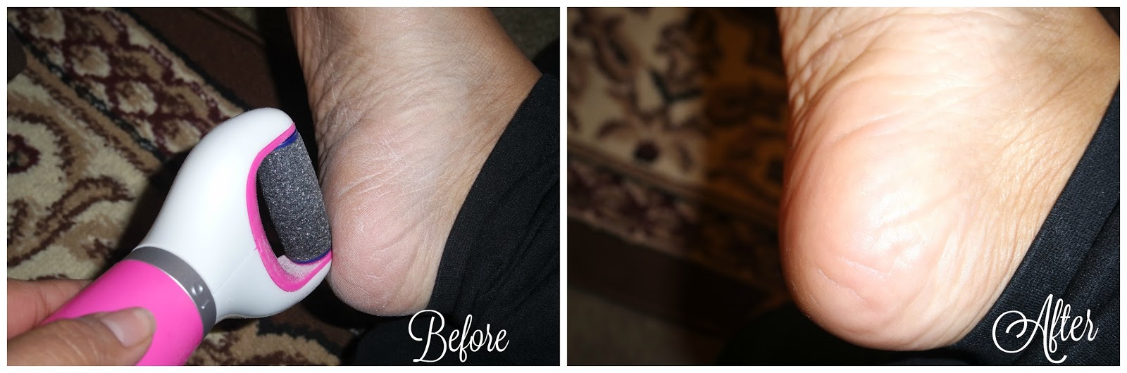 before and after amope pedi perfect