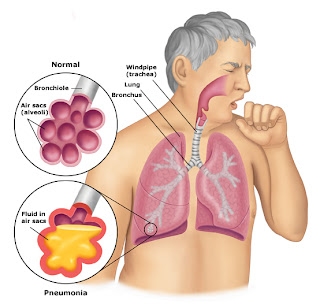 Pneumonia Aspiration, Aspiration Pneumonia Etiology, Aspiration Pneumonia treatment, antibiotics aspiration pneumumonia, Pneumonia aspiration definition,  Aspiration pneumonia symptoms, pneumonia from aspiration, Symptoms of aspiration, what is aspiration pneumonia