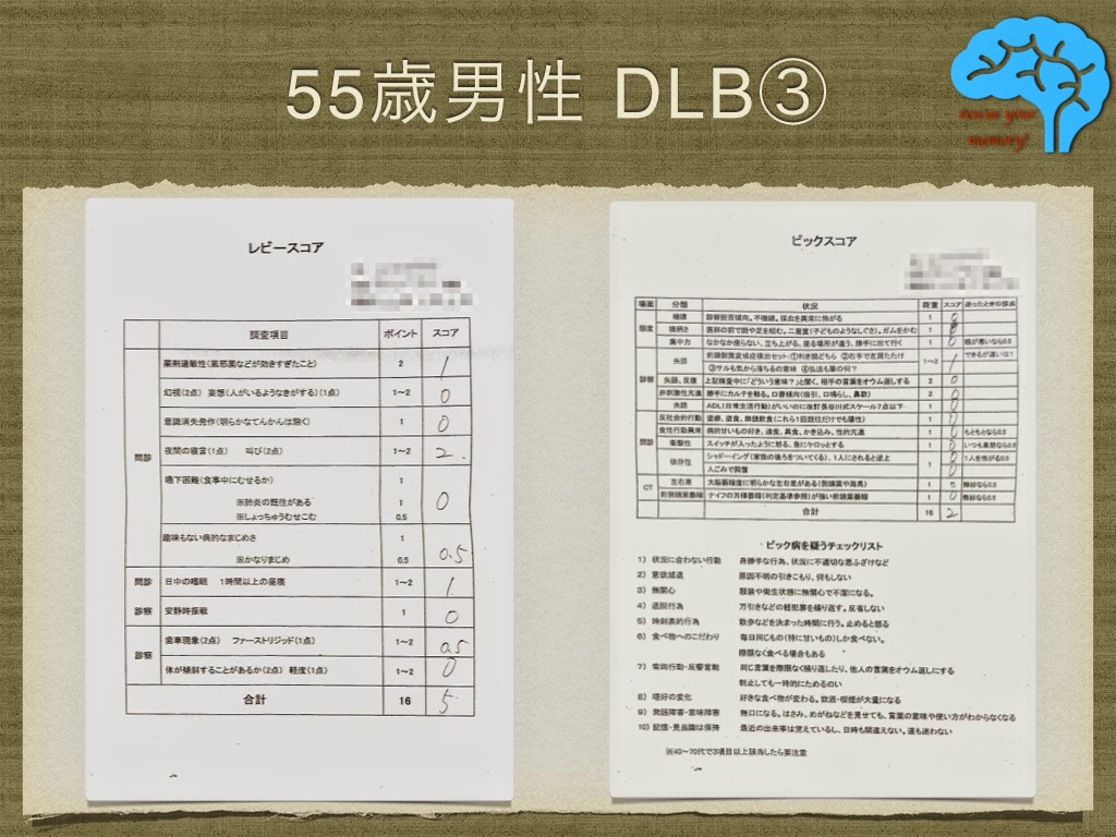初期のレビー小体型認知症(DLB)③
