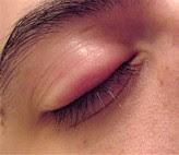 Penyebab mata bintitan dan cara mengobatinya