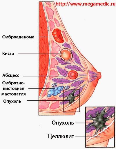 Все о фиброзно - кистозной мастопатии