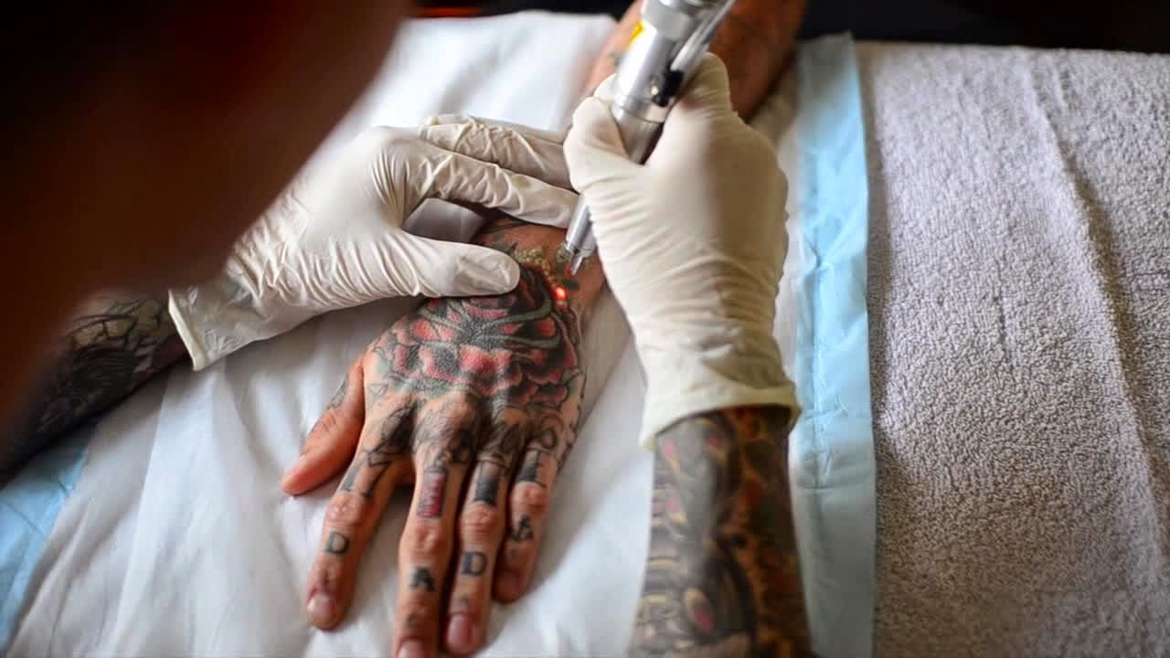 New tattoo removal technologies think before you get for New tattoo removal technology