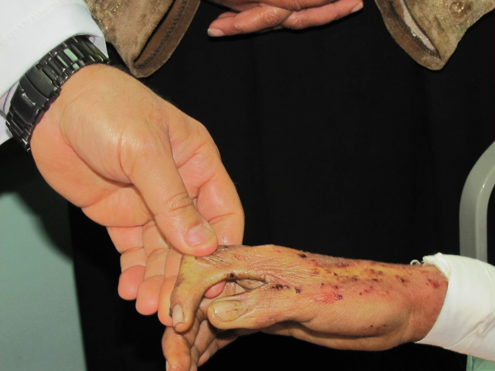 Trattamento di una spina dorsale in Mosca il 67esimo ospedale