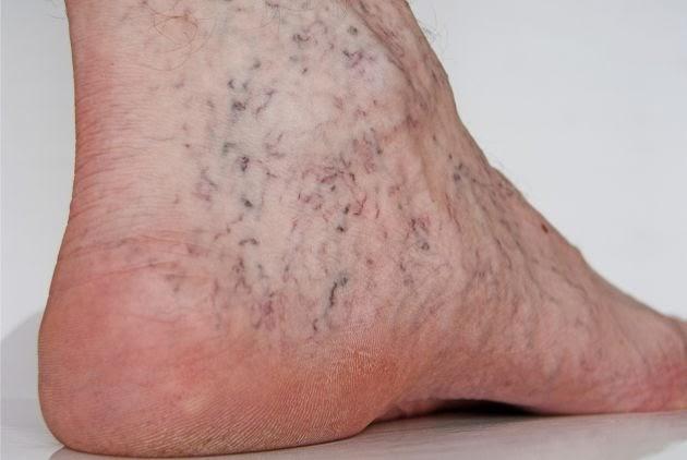 Que ungüento usar a la inflamación de las venas en los pies