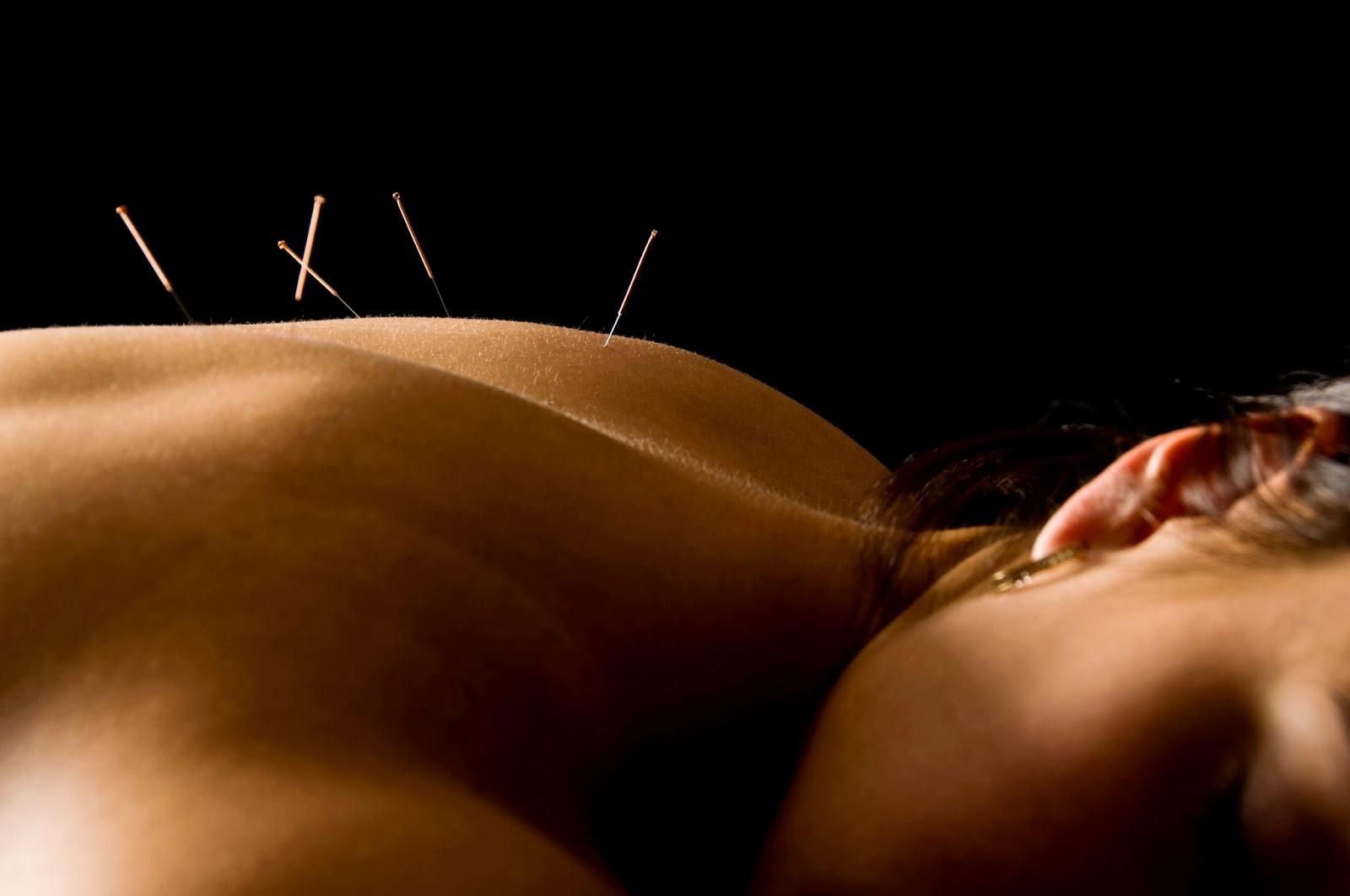 acupuntura-en-huesca