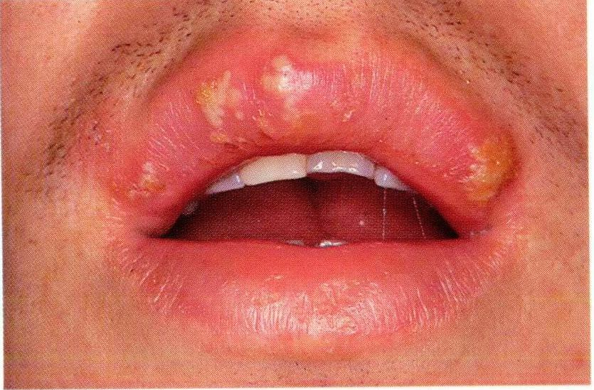 Urethritis after unprotected oral sex - STDs
