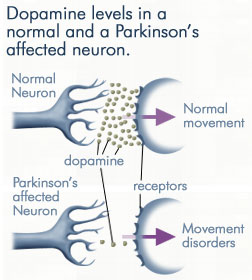 parkinsonsdopamine%2B%2525281%252529 - Early Symptoms of Parkinson's Disease