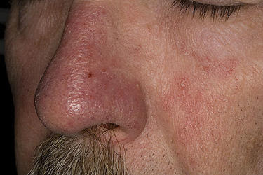Thin Skin Problems In The Elderly Causes, Treatment, Prevention
