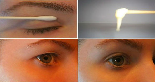 Tips Mudah Kencangkan Kelopak Mata Kendur dalam 2 Menit