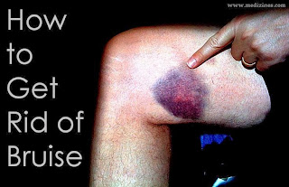 How to Get Rid of Bruise
