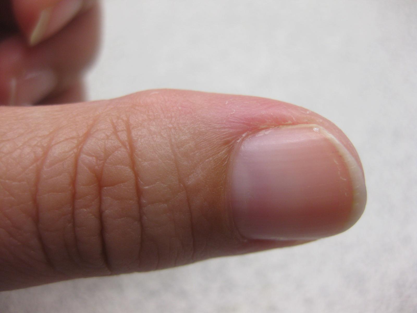 ondt i yderste fingerled