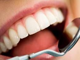 تعرف على السيدة التى اجريت عملية فى الاسنان فتغيرت لغتها  - اسنان بيضاء ناصعة جميلة
