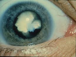 Cataract-causes-symptoms-treatment-remedies-Hindi