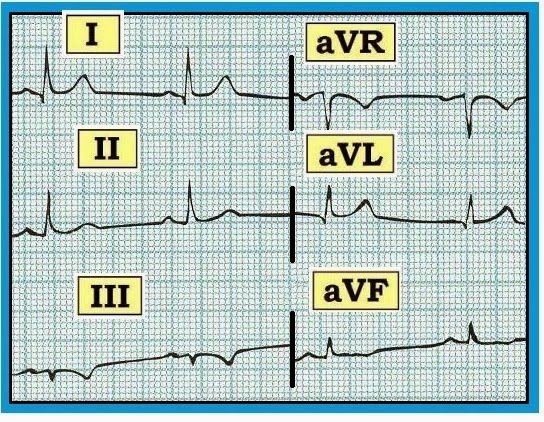 ECG Interpretation: ECG Interpretation Review #79 (Normal Q Wave – T ...