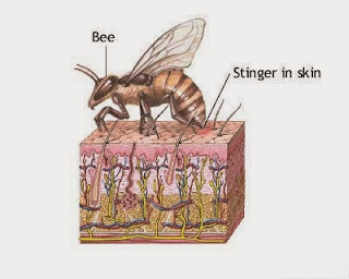 Allergic Reactions to Insect Stings, Bee Stings Causes, Types, Symptoms And Treatment