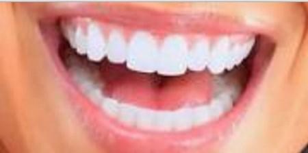 Ini Dia 11 Cara Memutihkan Gigi Secara Alami Mudah Dan Cepat