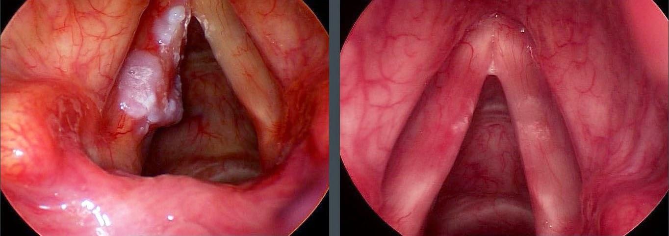 Nguyên nhân và triệu chứng ung thư thanh quản