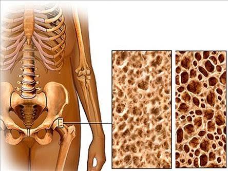 Kemik Erimesine Karşı Kemik Oluşumu