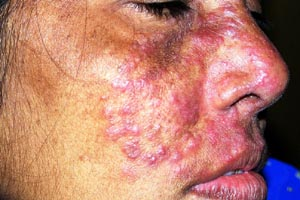 steroid based creams side effects