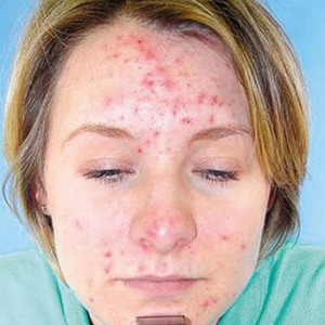 Simple Tips to Cure Your Acne Naturally